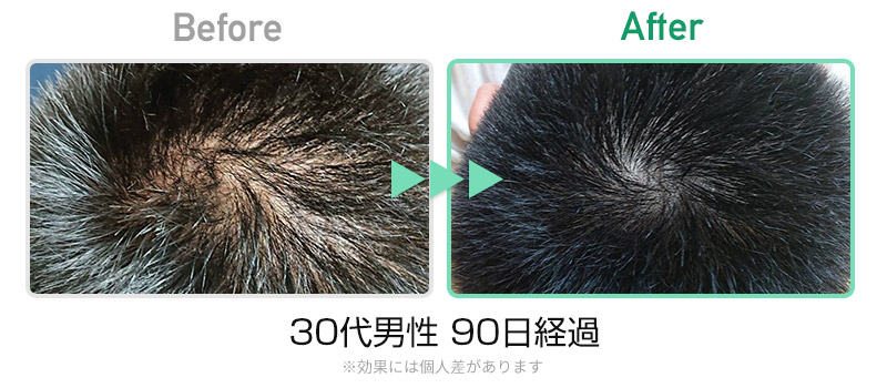 30代男性90日