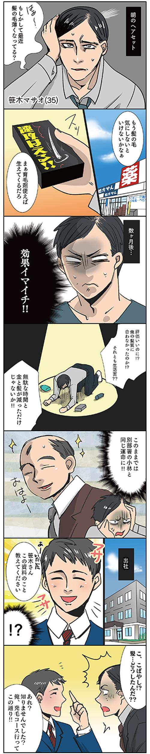 昭和区御器所トレサンパオム 薄毛漫画2